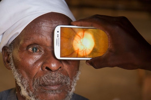 IT for Good - PeekVision - eye-phone - diagnostic oculaire via un smartphone